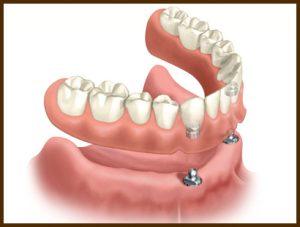 proteza-pe-implant-cu-2-implanturi