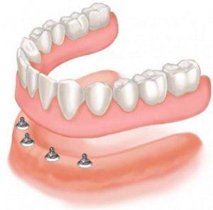 proteza-pe-implant-cu-4-implanturi