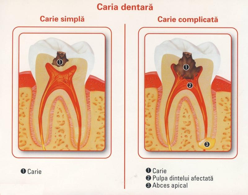plomba dentara