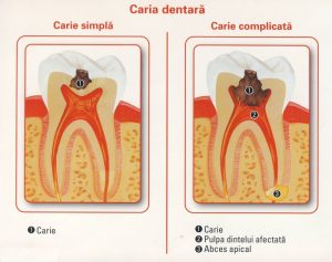 carie-dentara